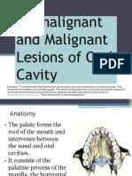 Premalignant Malignant Lesions of Oral Cavity