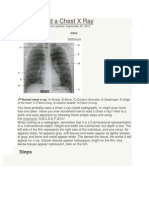 How to Read a Chest X Ray