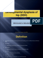 development dysplasia of hip