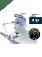 conference applications de la stimulation magnétique transcrânienne (rTMS) en psychiatrie