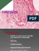 Vasculitis ,Amiguis