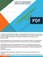 PARÁLISIS DE BELL O FACIAL.pptx