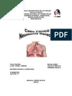 Neumonia Derecha