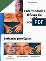 LE, Dermatomiosistis, Esclerodermia