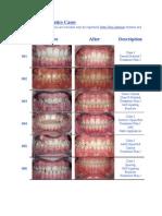 Treated Orthodontics Cases