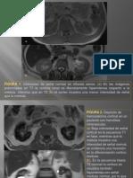 dipositivas_deposito_hemosiderina