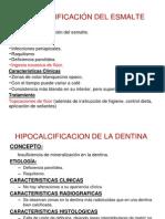 Hipocalcificacion Del Esmalte