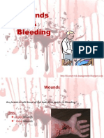woundsbleeding-090322034735-phpapp01