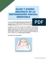 Análisis y Diseño Biomecánico de la Restauración Parcial Removible - Quintero