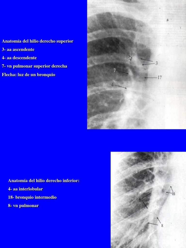 Lujo Anatomía Bronquio Intermedio Galería - Anatomía de Las ...