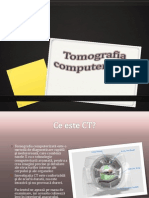 Tomografie Computerizata