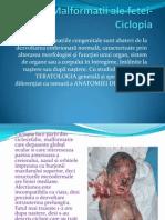 91091475 Malformatii Ale Fetei Ciclopia Pptx