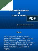 Neoplasia s de Vagina y Vulva