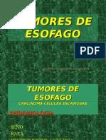 20090511_tumores_esofago