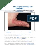 La_dermatitis_ocupacional_más_vale_prevenirla