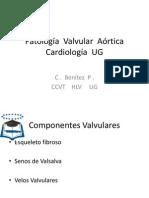 Patología  Valvular  Aórtica