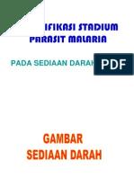 Stadium Plasmodium