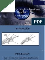 Glaucoma Facomórfico, Facolítico y Traumático
