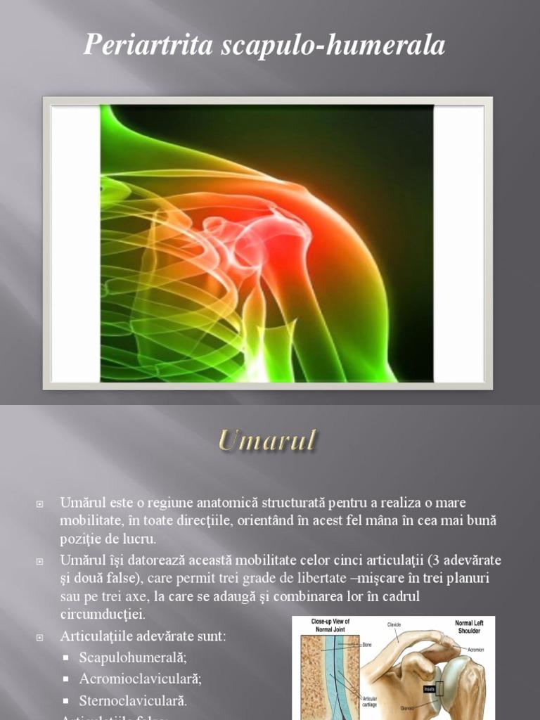 kinetoterapia in periartrita scapulo humerala osteocondroza articulației încheieturii