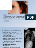 Postoperative Blindness After Spine Surgery in the Prone Position