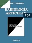 Radiologia Articular Artritis Blanco Negro Www.rinconmedico.smffy.com