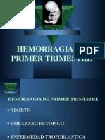 Hemoorragia Del Primer Trimestre Exposicion Del Dr. Calderon 8 Semana