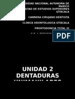 Dentaduras Unimaxilares