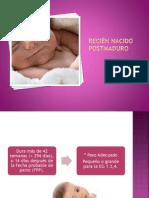 RECIÉN NACIDO POSTMADURO