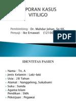 kasus Vitiligo