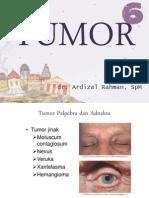 Tumor Orbita Dr Ardizal Rahman