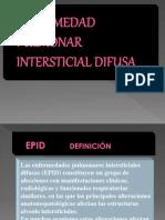 11. EPID