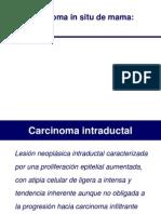 Carcinoma Mama - Copia