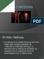 Nefritis y Nefrosis