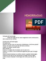 hemorragias-111122130429-phpapp01