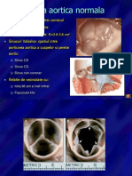 16173526-Stenoza-aortica