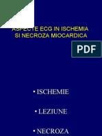 16174037 Aspecte ECG in Ischemia Si Necroza Miocardica