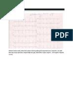 Ischemic Heart Disease 2