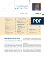 Fracture and Dislocation of Foot