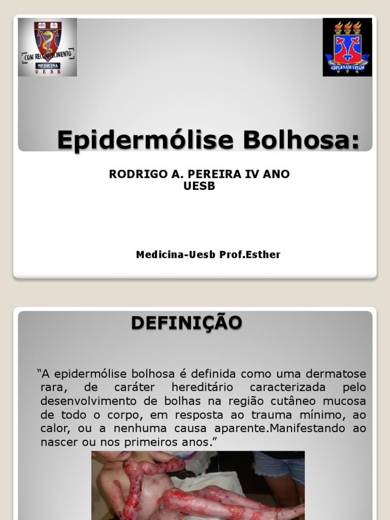 Epidermolise Bolhosa Simples Pdf