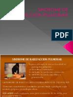 62934268-6-Rarefaccion-Pulmonar