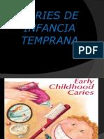 4. Caries de Infancia Temprana (Unah)