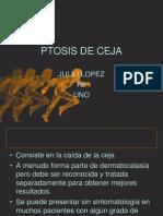 Ptosis de ceja  y Dermatocalasia.ppt