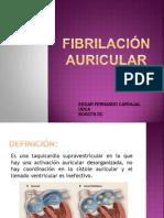 Fibrilacíon Auricular