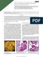 Papillary Adenoma Vet World