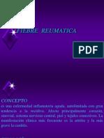 018  FIEBRE REUMATICA.ppt