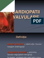 stenoza mitrala
