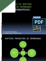 DIAGNOSTICO DE RUPTURA PREMATURA DE MEMBRANAS terminado.pptx
