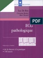 ECG Pathologique