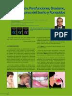 9 BRUXISMO.ortodoncia Parafunciones Bruxismo Apnea Del Sueno y Ronquidos