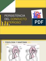 Conducto arterioso persistente